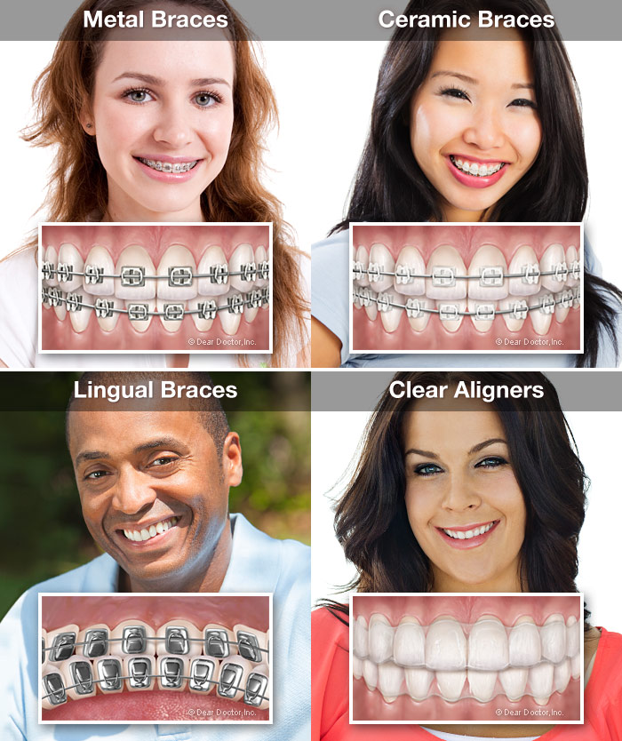 How Much Are Braces, How Much Does Braces Cost