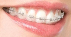 how much are braces